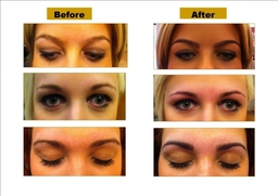 Eyebows Before And After