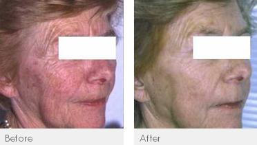 Details For Perfect Skin Solutions In 149 151 Winter