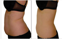 i-lipo treatment pictures Before and After