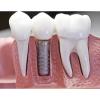 RH Dental Laboratory Ltd