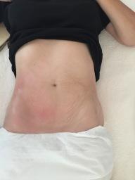 Lipo Slim first treatment results