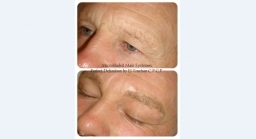 Male Eyebrows 3D Microblading By El Truchan @ Perfect Definition London