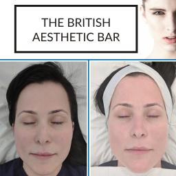 AlumierMD Facial