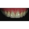 Aperitif Dental Laboratory