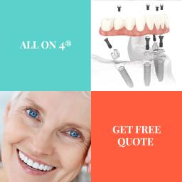 all on 4 dental implants turkey