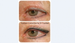 Eyeliner Correction by El Truchan @ Perfect Definition