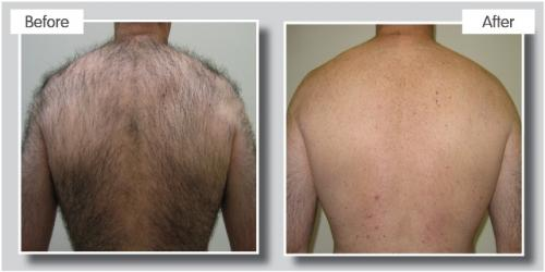 reparation cicatrice cuir chevelu gratte