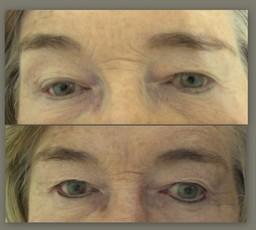 Before & After Eyeliner