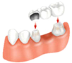 Dental Bridges, private dentists, cosmetic dentists London and in Budapest