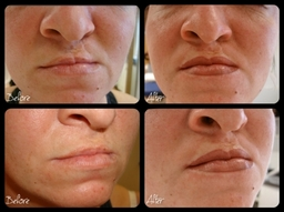 Semi Permanent Makeup For Cleft Lip By El Truchan
