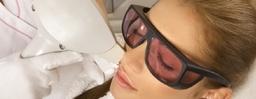 Facial Permanent Hair Removal