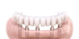 Implant Full Lower