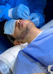 Ealing Clinic Beard Hair Transplant