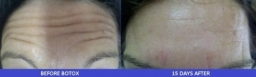 forehead- botox before/after