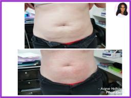 Fat Dissolve Treatment