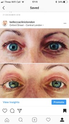 Non Surgical Blepharoplasty