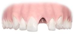 Implant Single Before