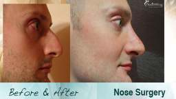 Befor and After a Nose Surgery