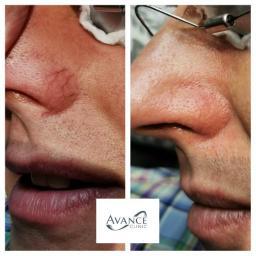 Facial Thread Vein Removal