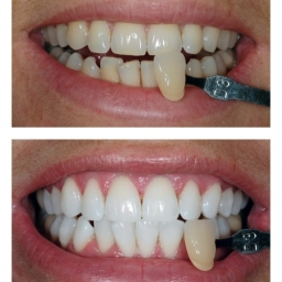 Before After Zoom Teeth Whitening