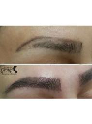 Ealing Clinic Eyebrow Transplant