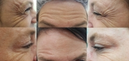 crows feet and forehead- before/after botox