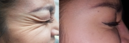 crows feet befor/after botox