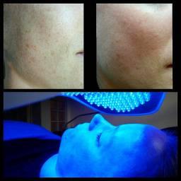 Dermapen Pigmentation Reduction