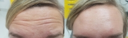 before after forehead botox treatment