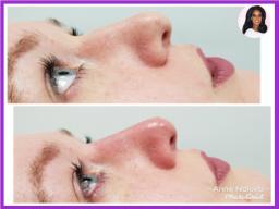 Rhinoplasty (Liquid Nose Job) Treatment