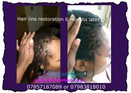 Sisterlocks restore hairline after a few months