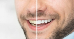 Man Before And After Teeth Whitening