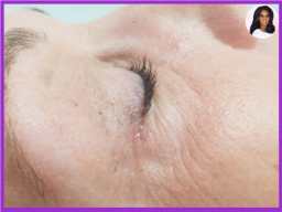 Wrinkle Relaxing Treatment