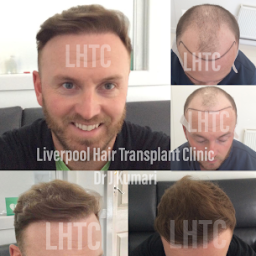 Just 7 months results! Hair transplant conducted b