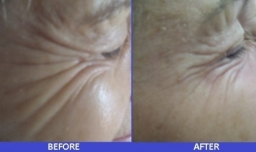 crows feet before after- botox