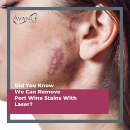Port Wine Birth Mark Stain Treatment