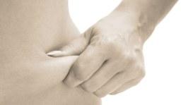 Slimming Anti-Cellulite Massage
