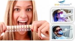 Teeth Whitening Essex