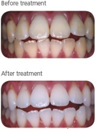 Before/after Zoom teeth whitening