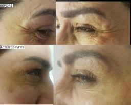 crows feet before/after- botox