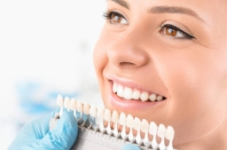 Excellent teeth whitening results