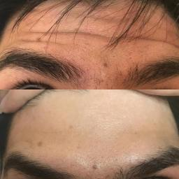 anti wrinkle injection before and after botox