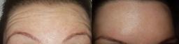 forehead botox