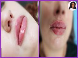 Lip Filler Enhancement