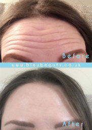 Botulinum Toxin Injection (botox) Before & After