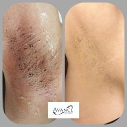 Laser Hair Removal Before & After 8 Sessions