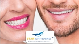 Ladies and Gents Teeth Whitening Treatment
