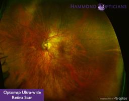 Retinal scans