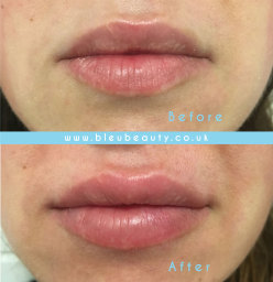 Lip Fillers - 1ml Before & Immediately After