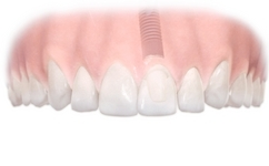 Implant Single After